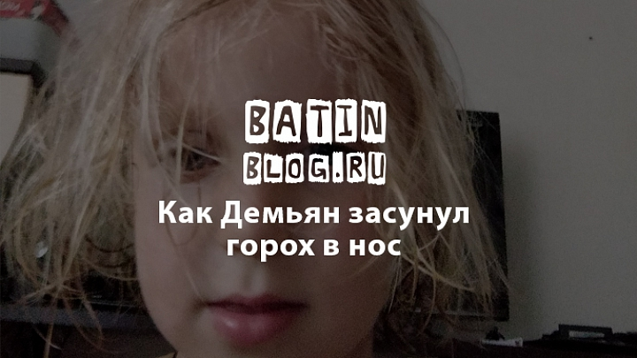 Ребенок засунул в нос горох - Батин Блог